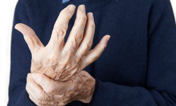Signs an Older Adult May Have Osteoarthritis
