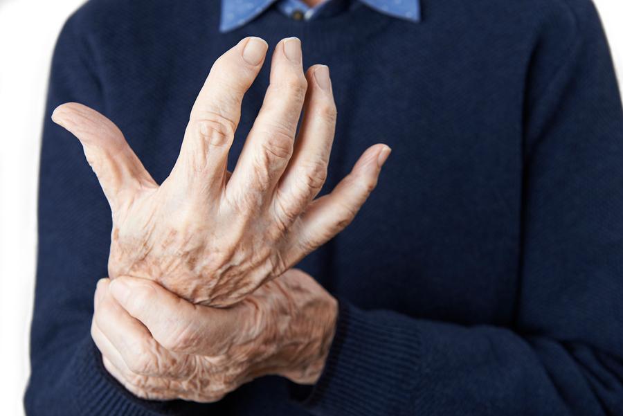 Is it Arthritis?